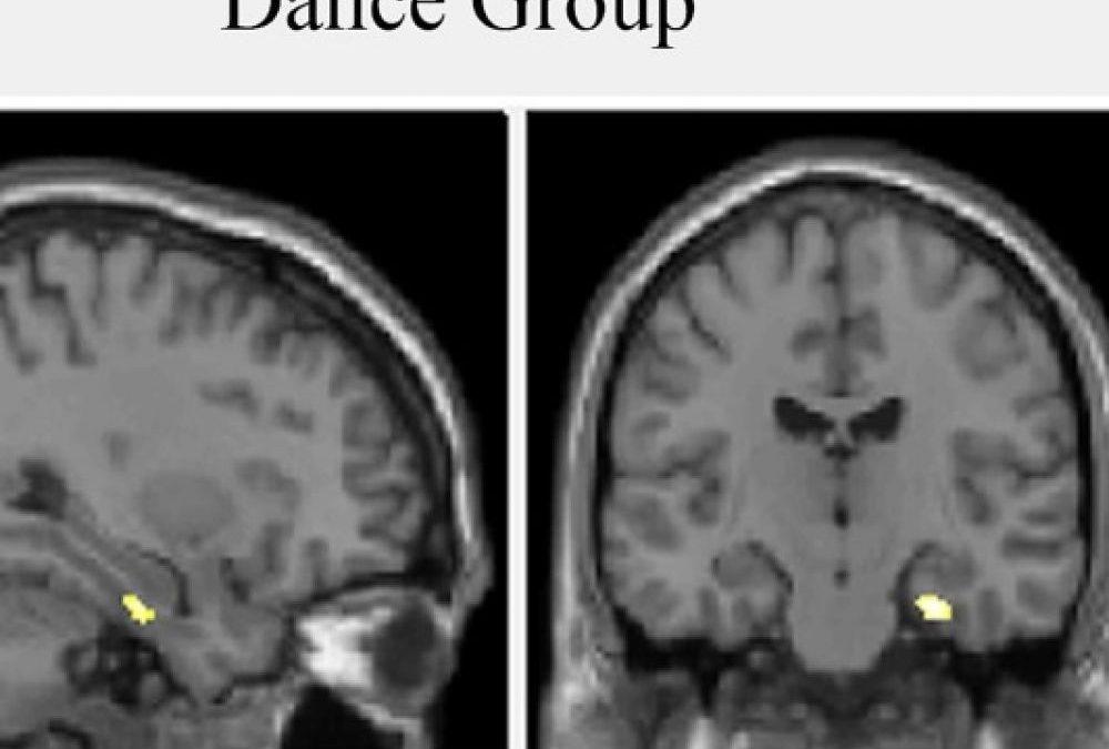 Danza multisensoriale e cervello